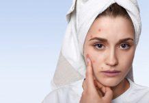 doenças de pele mais comuns no verão